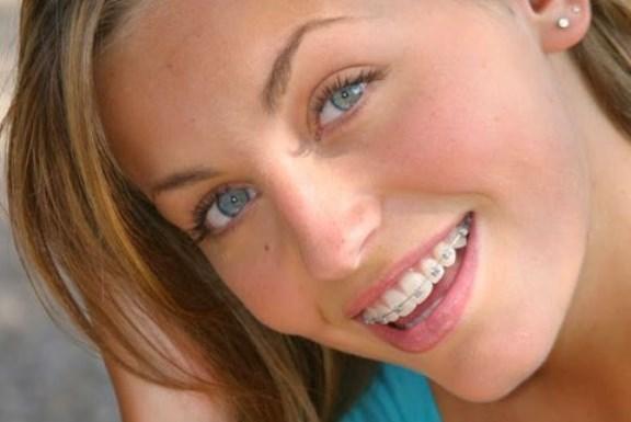 clinipam-aparelho-dentista-ortodontia-odontologia-plano-de-saude-curitiba